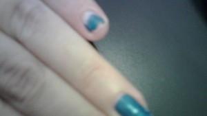 brokennail